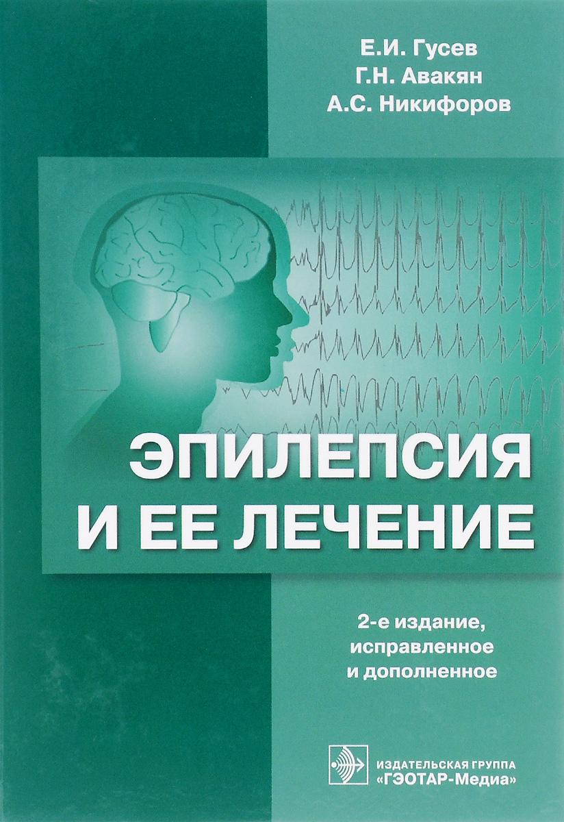 Транскраниальная магнитная стимуляция у больных с различными формами эпилентических припадков.